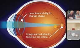 With presbyopia the eye is unable to focus near objects.